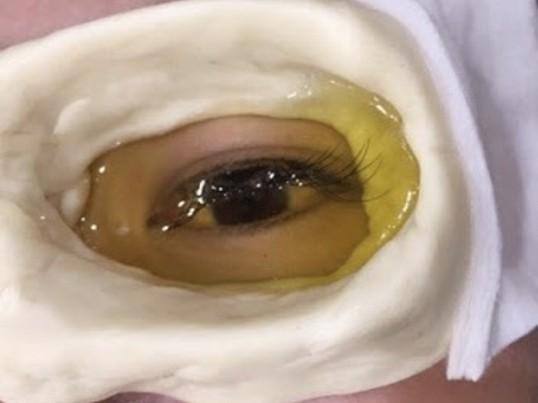 アーユルヴェータ眼球オイル洗浄、ヘッドマッサージなどを1日で習得!の画像