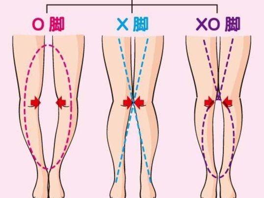 この足の形にドキっとしたら!あなたの脚診断と正しいトレーニングの画像