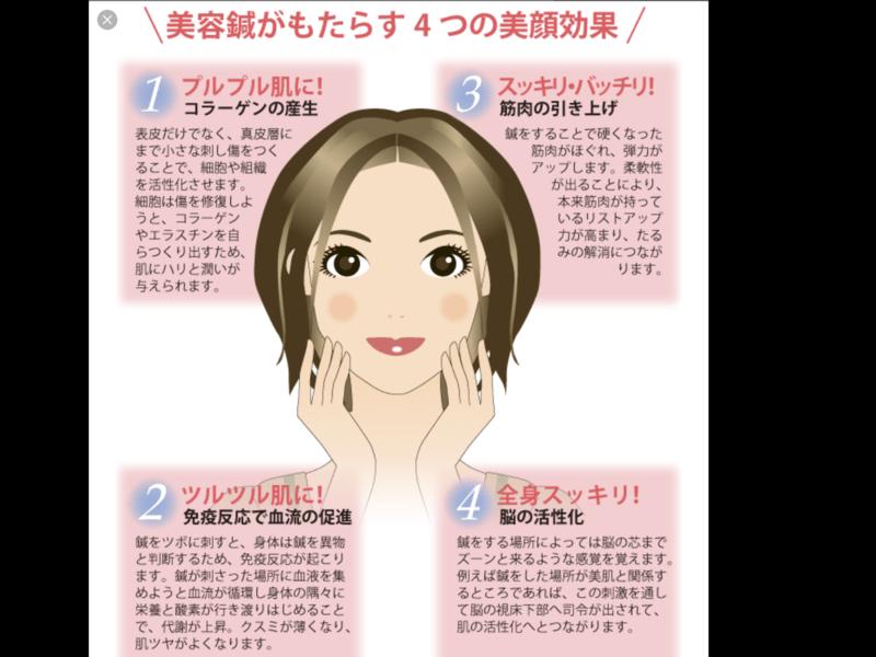 セルフケア用美容はりの使い方を教えますの画像