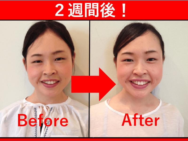 3回でマイナス10歳!顔と心が生まれ変わる・顔ヨガ教室_横浜石川町の画像