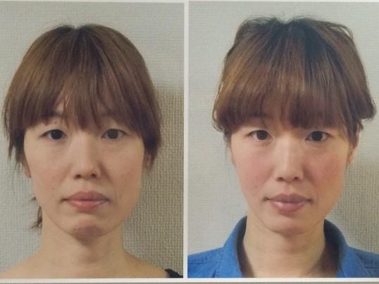 頭蓋骨がなぜ歪むのか?原因から実践までの小顔講座の画像