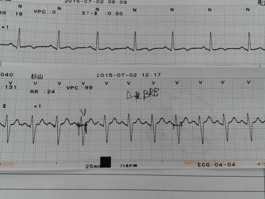 看護師さんのためのモニター心電図見方考え方講座の画像