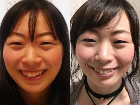 倉敷開催! 笑顔美人&表情筋レッスン 一度のレッスンで笑顔美人の画像