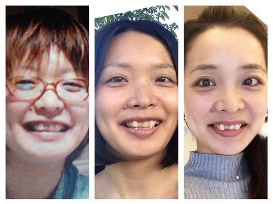 ⑤セルフケアレッスン・小顔矯正・目の疲れ編|しあわせダイエット部の画像
