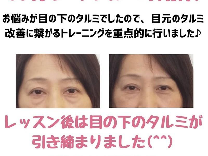 セルフ美顔メゾット☆表情筋トレ×顔ヨガ×骨格矯正×頭皮&耳リフレの画像