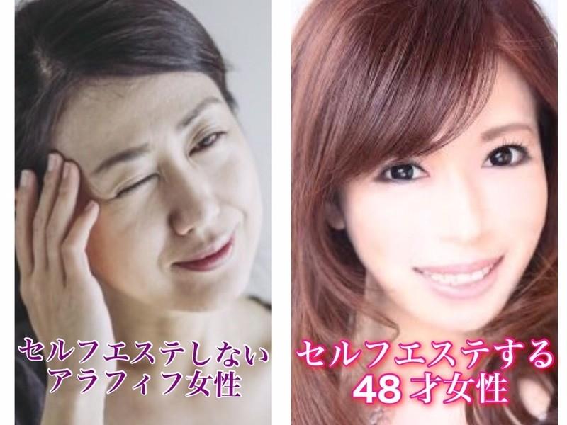 💖小顔矯正で【若見え小顔】⭐若見えに特化した1dayセルフ小顔矯正の画像