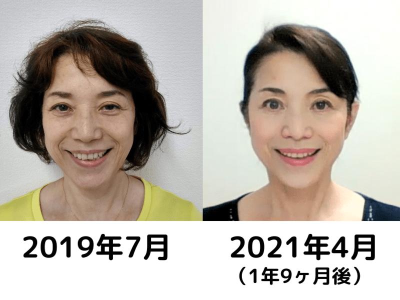 【中級編】リフトアップ!若返り!50代・60代のための顔ヨガ講座★の画像