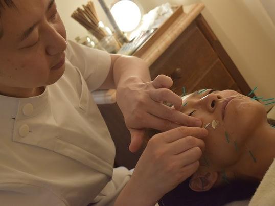 ■男性も歓迎します!■美容鍼灸トライアル講座の画像