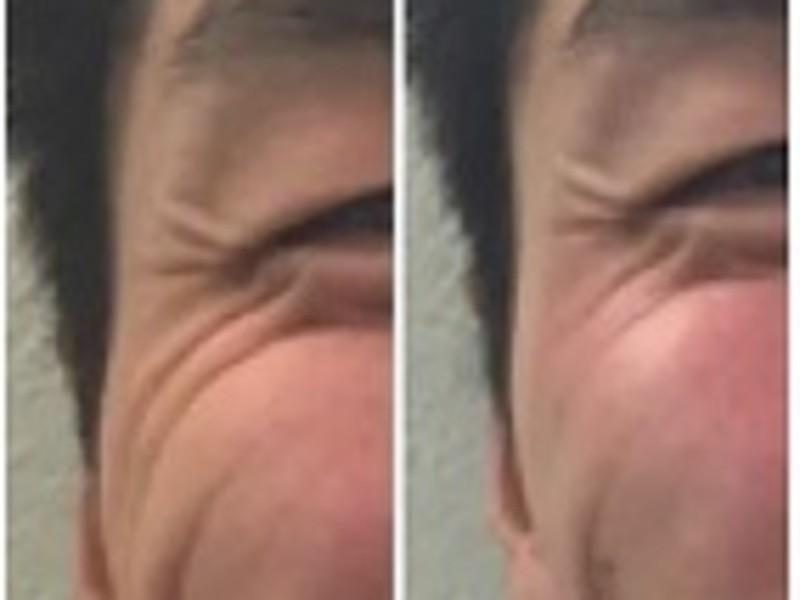 【お肌激変!】現役サロンオーナー直伝のスキンケア講座の画像