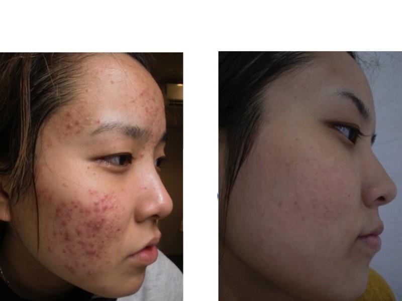 皮膚科でも治らなかったニキビ肌が変わる!ニキビ改善美肌術講座の画像