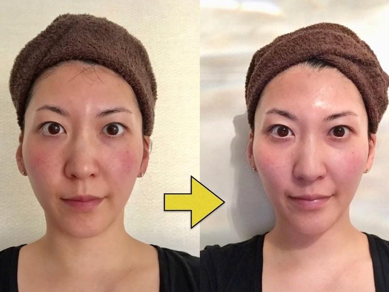 【小顔調整+小顔セルフマッサージ】−5歳のお顔を作り出す講座☆の画像