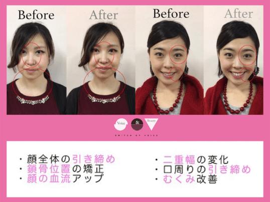 美顔ボイトレ特別編(※3回レッスン完了後の方限定スキルアップ講座)の画像