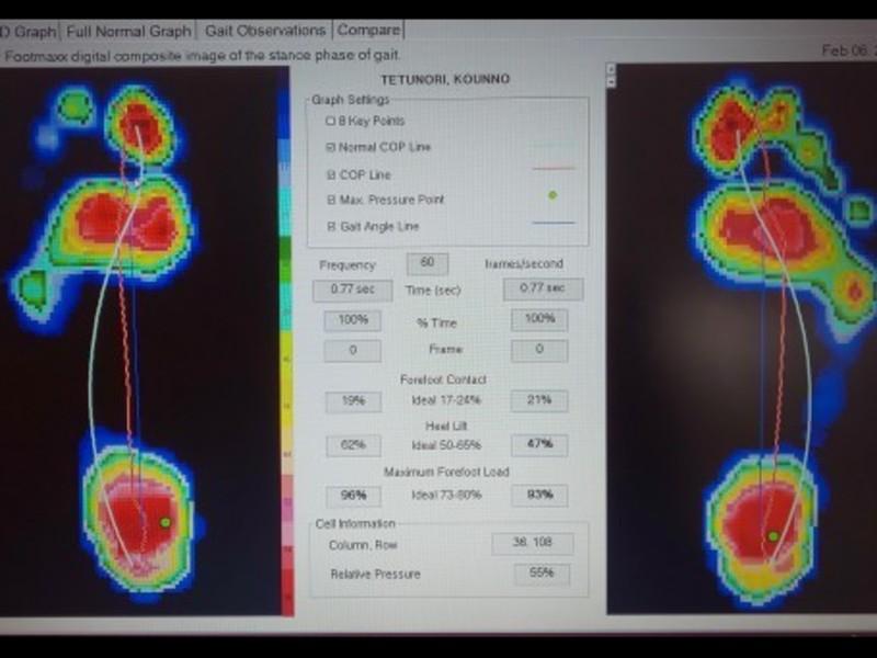 【人間本来の歩き方を】ウォーキング分析改善レッスンの画像