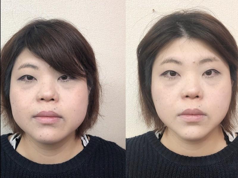 【小顔矯正付き】コンプレックスが魅力に変わるセルフ小顔ケアレッスンの画像