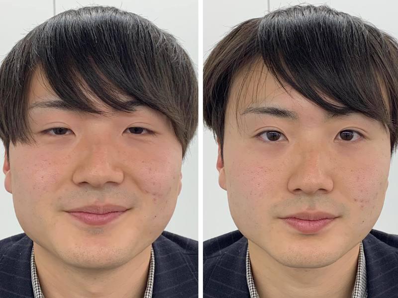 道具を使わず自分でできる小顔矯正テクニック講座の画像