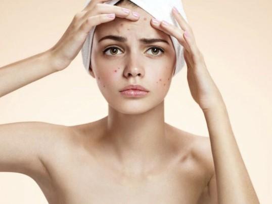 ニキビ・肌トラブル改善♡カラダの中から美肌づくりのための講座の画像