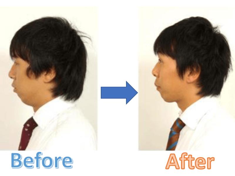 【男の顔ヨガ】表情筋トレーニング体験レッスンの画像