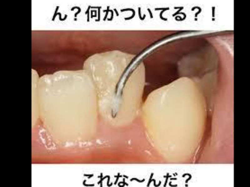 お口がまさかの細菌の培養器?!あなたのお口は見られている?! の画像