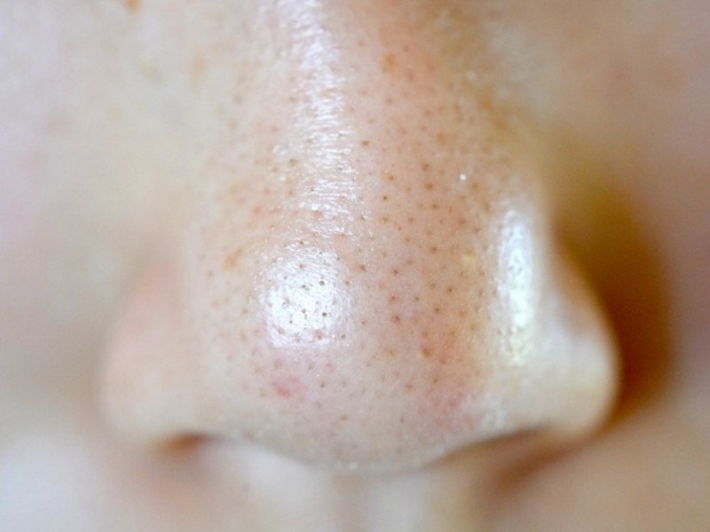 これさえ知れば誰でも美肌!男の美肌を作るスキンケアの基本講座。の画像