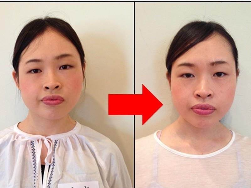 顔の運動を5日続けて法令線、皺、むくみなどの顔の悩みを解決しよう!の画像
