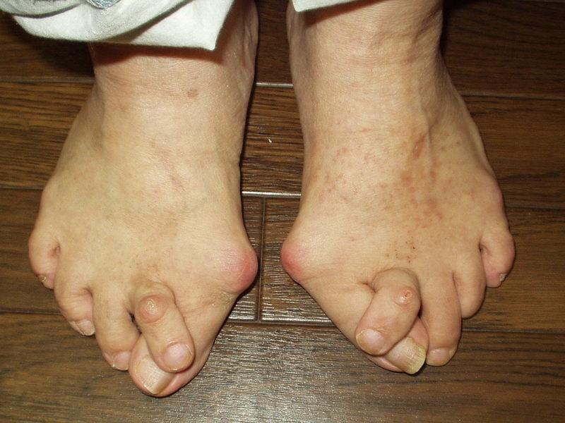 「ブレない」体幹を作る足部コンディショニングの画像