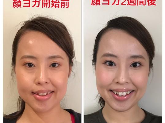 【平日夜】短時間で整形級の変化☆顔deヨガnightレッスンの画像