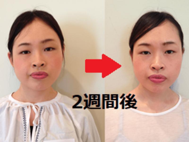 顔のむくみ、たるみ、しわ、ほうれい線、二重あご解消│顔ヨガ│横浜の画像
