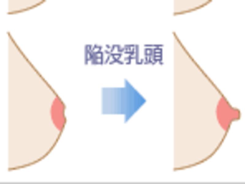 自分でできる乳房ケアの画像