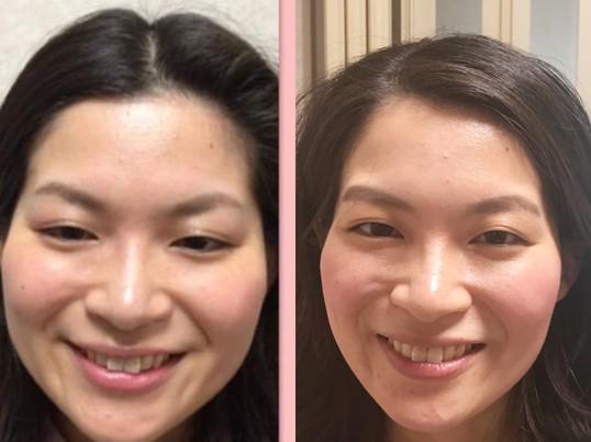 【熱海開催!特別企画】笑顔美人に変わる見た目改善プログラムの画像