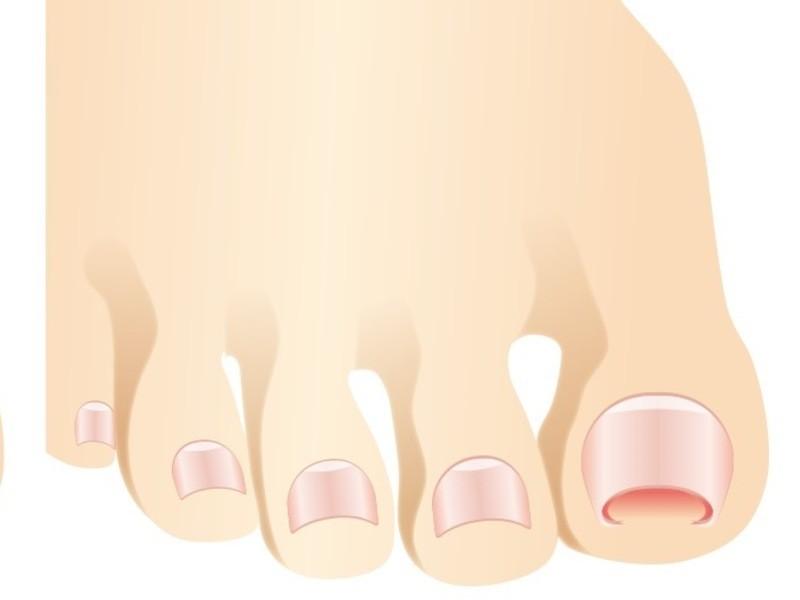 「オンライン」爪から健康を考える。爪は身体のバロメーターです。の画像