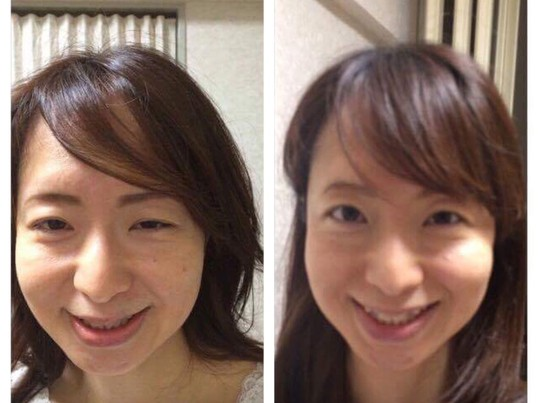 朝活!1日でシワたるみ改善!笑顔美人になる笑顔表情筋トレーニング。の画像