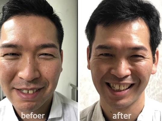 【オンライン開催!】シワたるみ改善.笑顔表情筋トレーニングの画像