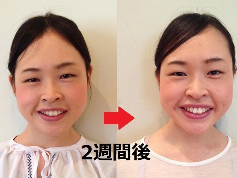 顔のたるみ、皺、法令線、むくみ等の悩みを1日5分の顔ヨガで解消!の画像